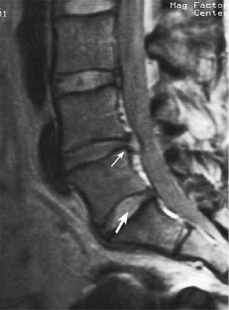 what is retrolisthesis at c5 c6