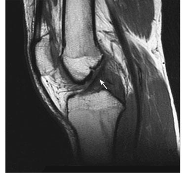 MRI-Knee