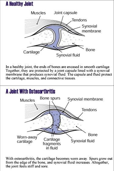 Osteoarthritis Joint Abnorm